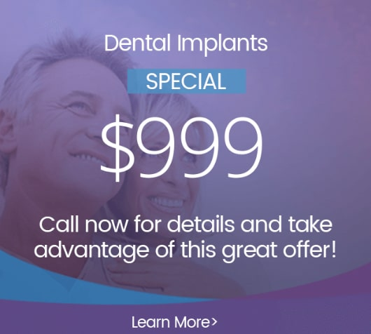 Special - Dental Implants $999